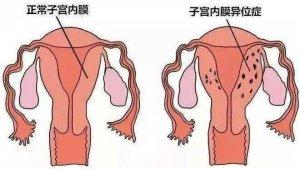 哪些是导致不孕不育症的关键因素